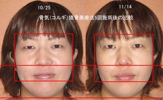 000-5回目-MIKIのコピー.jpg