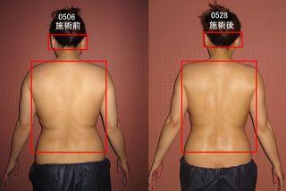 0528-本松さん背中比較.jpg