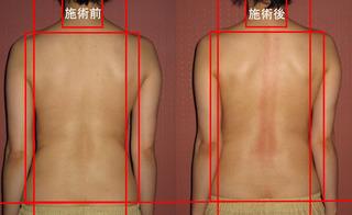 寺司背中比較のコピー.jpg