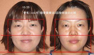 MIKI-NAKATA3回比較のコピー(.jpg